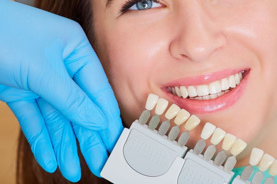 Whitening guide next to teeth