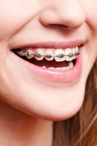 Young woman smiling with metal braces.