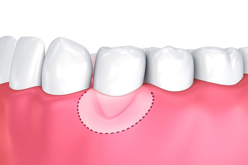 Illustration of added tissue after gum graft