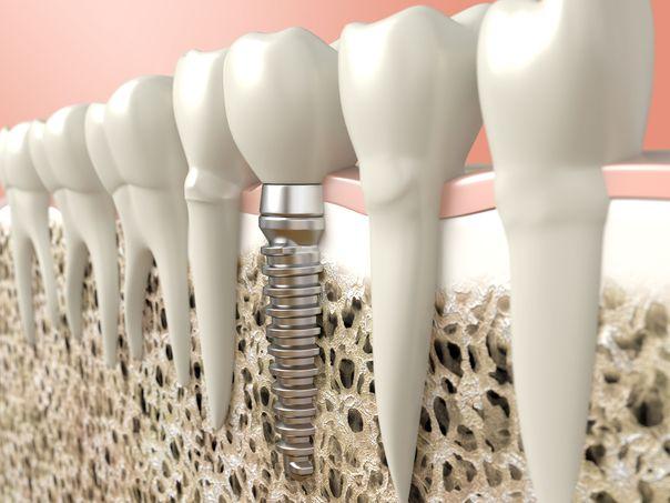 osseointegration, dental implants