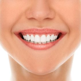 Woman smiling with white teeth.