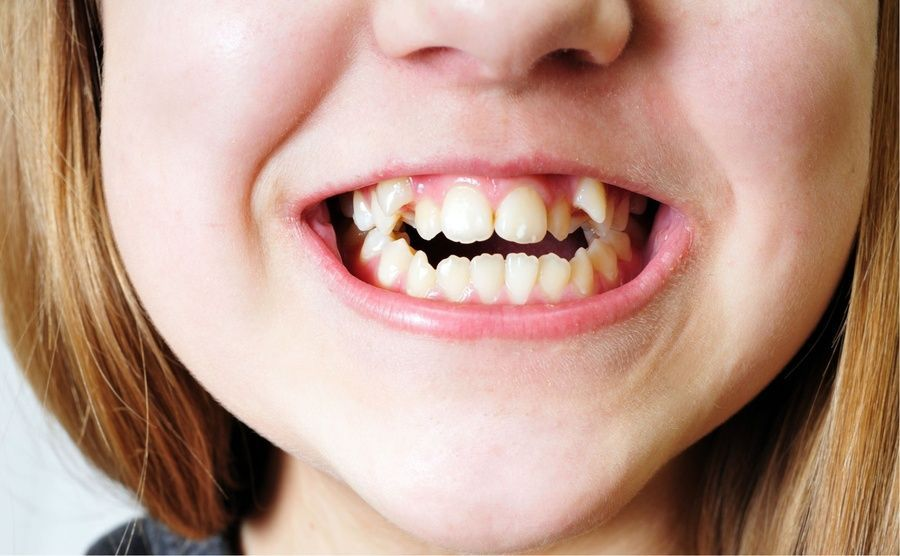 Up close of girl's improperly positioned canine teeth