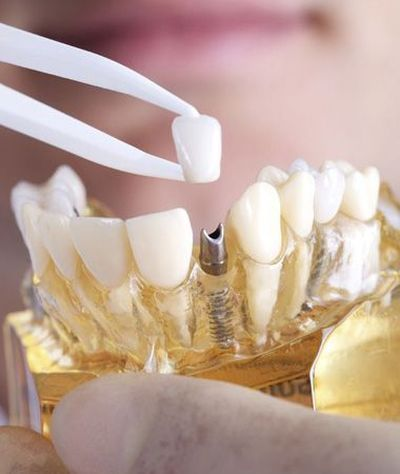 A crown atop a dental implant