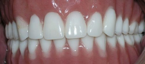 picture of patient after dentures