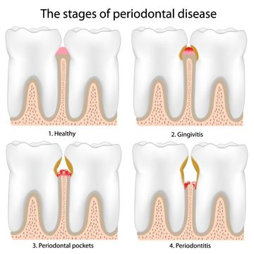Diagram demonstrating four stages of periodontal disease