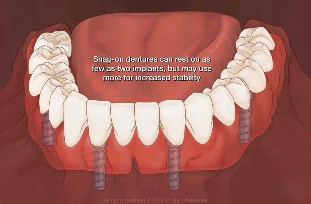 Illustration of Snap-On Denture