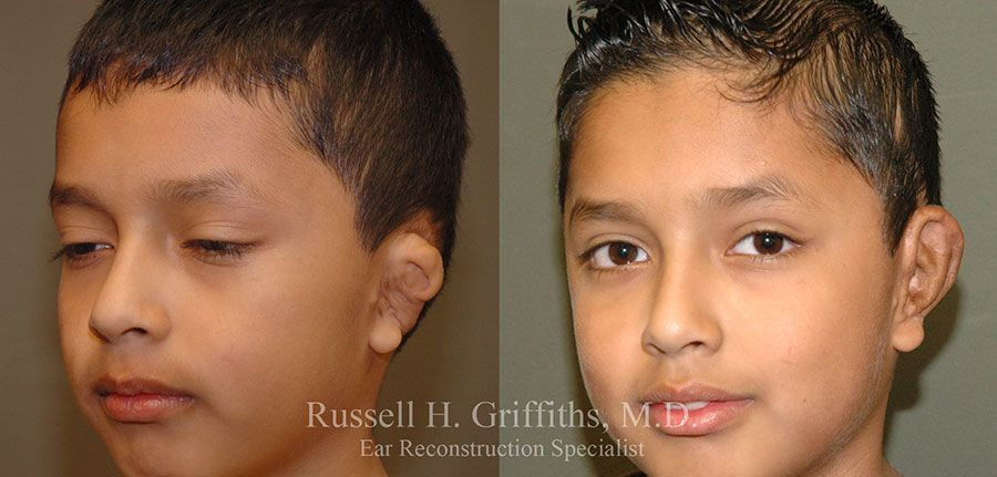Before and After revision surgery for grade III microtia
