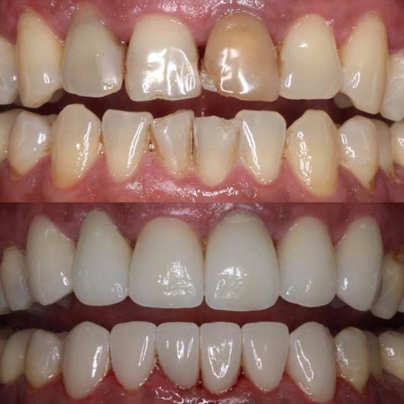 Before and after porcelain veneers treatment.