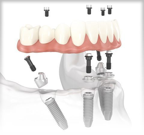 Digital illustration of All-on-4® treatment