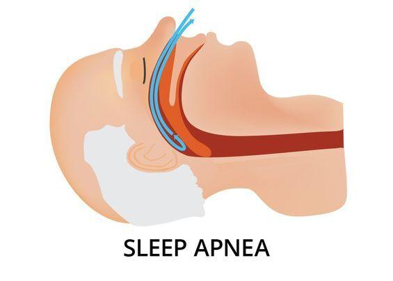 Sleep apnea illustration