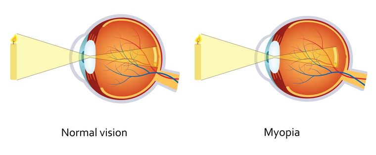 Diagram comparing the shape of a normal eye to that of a myopic eye.