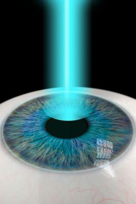 3-D illustration of eye undergoing LASIK