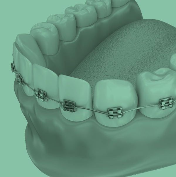 Healthy Smile with Invisalign