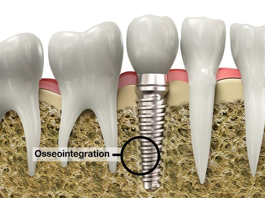 Dental implants and osseointegration