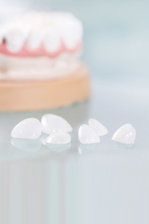Photo of porcelain veneers