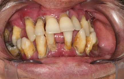 image of before/after implant-supported dentures