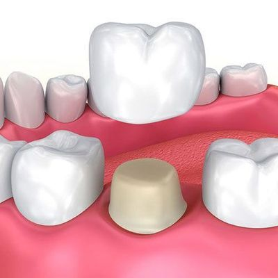 Illustration of crown and prepared tooth