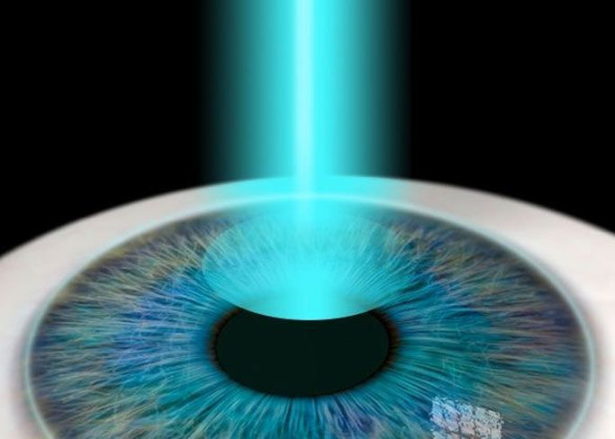Close-up of eye with green laser pointing into it.