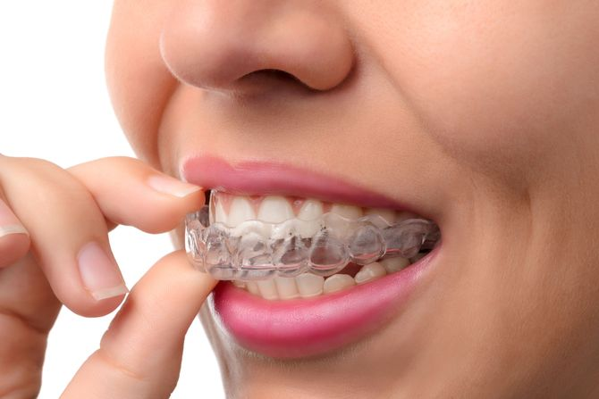 Photo of woman inserting clear aligner tray for teeth
