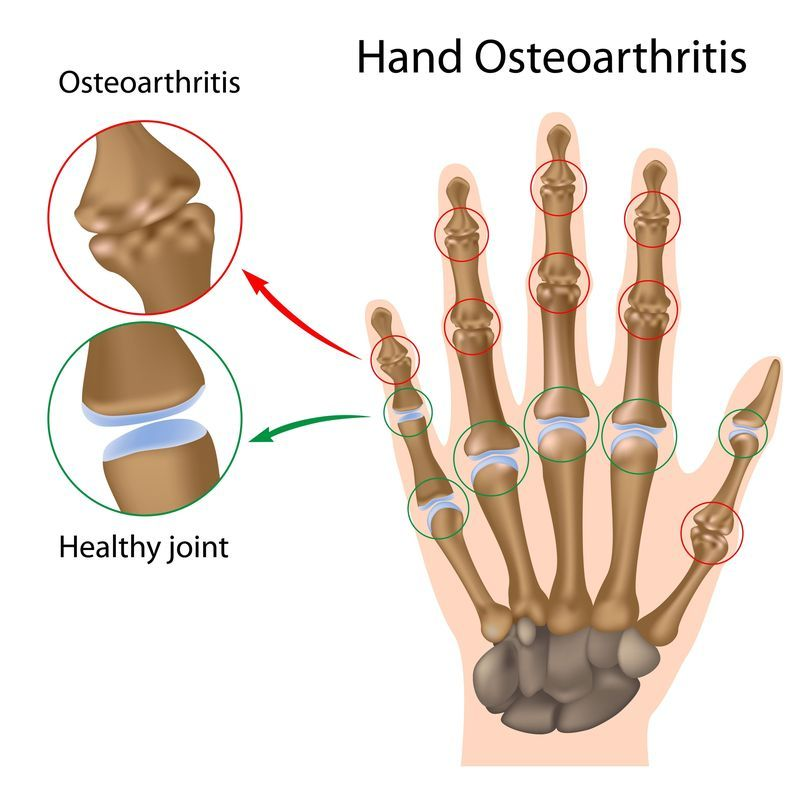 Illustration of osteoarthritis