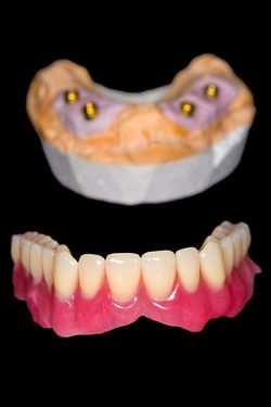 Photo of an All-on-4 denture