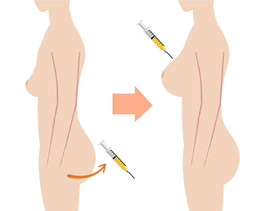 Illustration of fat extraction and fat injection.