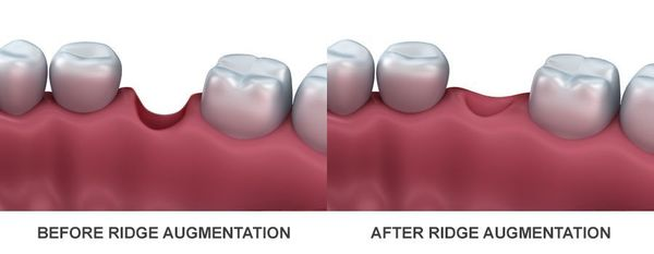Illustration of before and after ridge augmentation