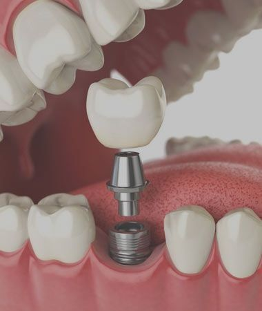 a model of a dental implant with crown