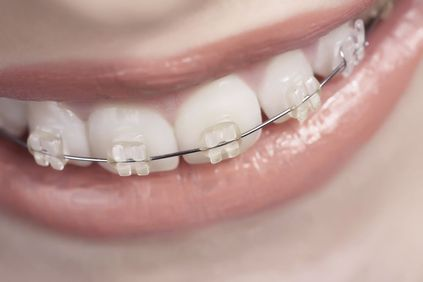 Woman smiling with braces.