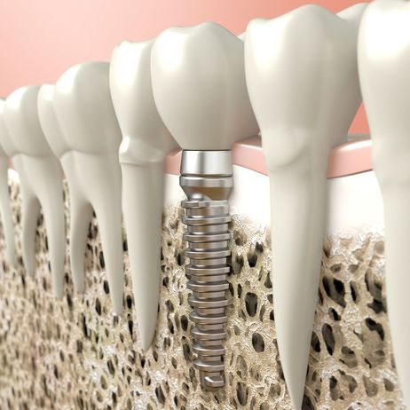Three-quarter view of a dental implant in between natural tooth roots