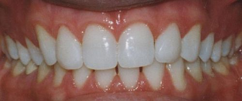 Porcelain veneers patient after picture