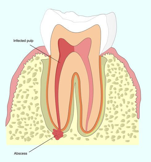 Illustration of an infected tooth in need of root canal therapy.