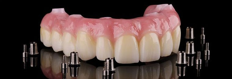 Prettau Zirconia bridge