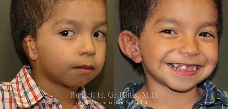 Before and After: One-stage microtia ear reconstruction surgery with canalplasty CAM 3/4 view.