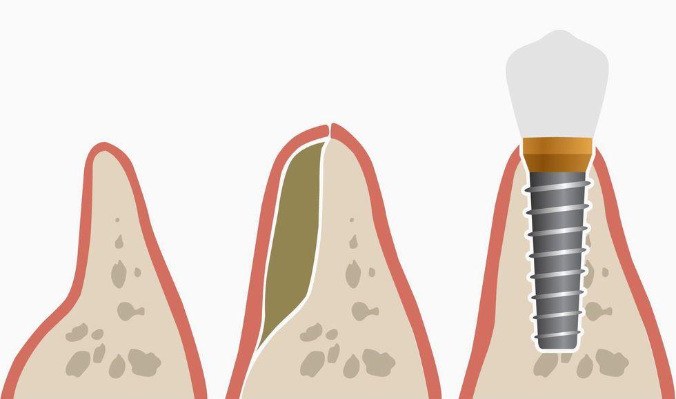 Illustration of how a bone graft procedure can enhance the jawbone.