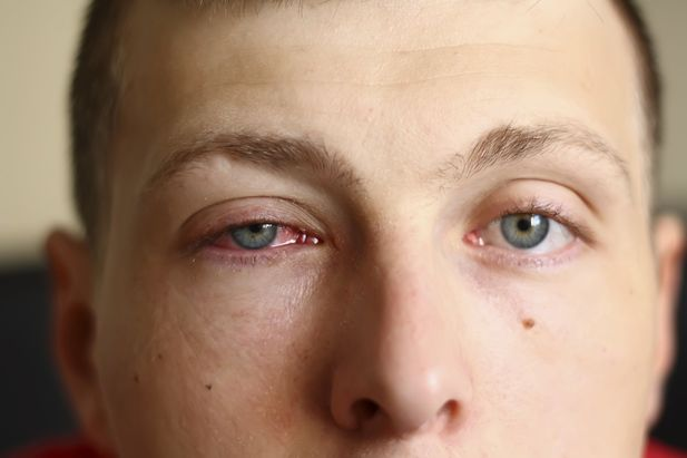 Photo of a man with pink eye