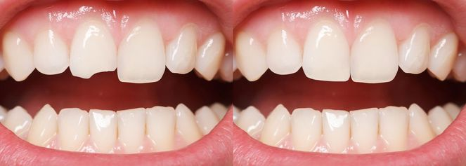 Chipped front tooth before and after dental bonding