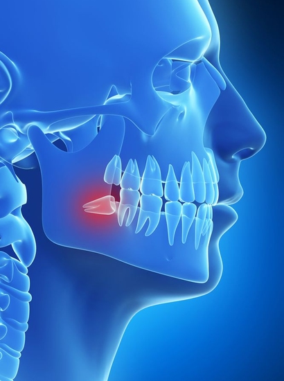 Illustration of head and jaw in blue with impacted wisdom tooth in red