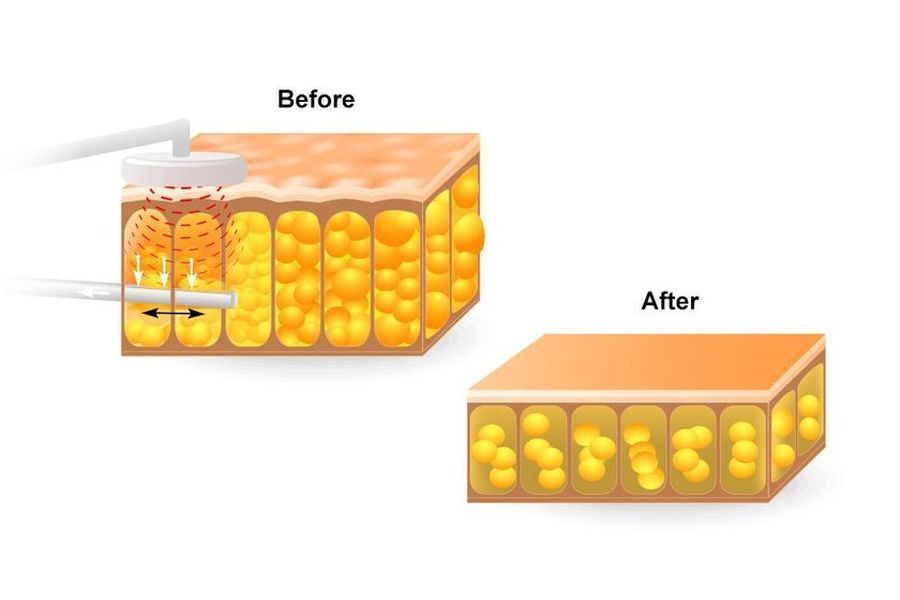 Illustration depicting fat cells before and after ultrasonic-assisted liposuction