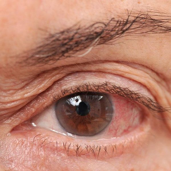 Close up of a red, dry eye