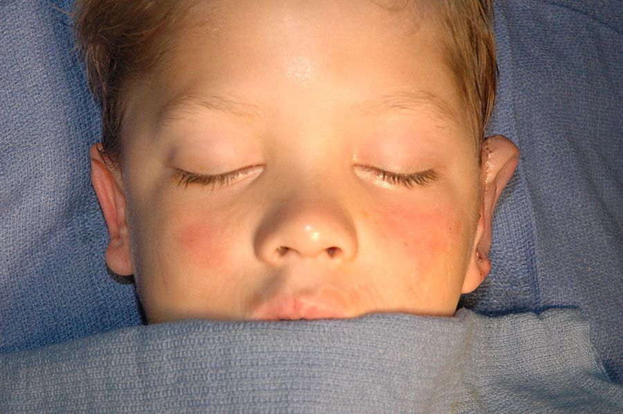 After revision surgery for grade III microtia Dr. Russell H. Griffiths MD
