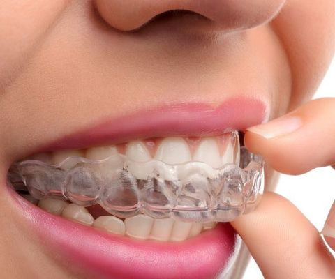 Invisalign® orthodontic alignment trays