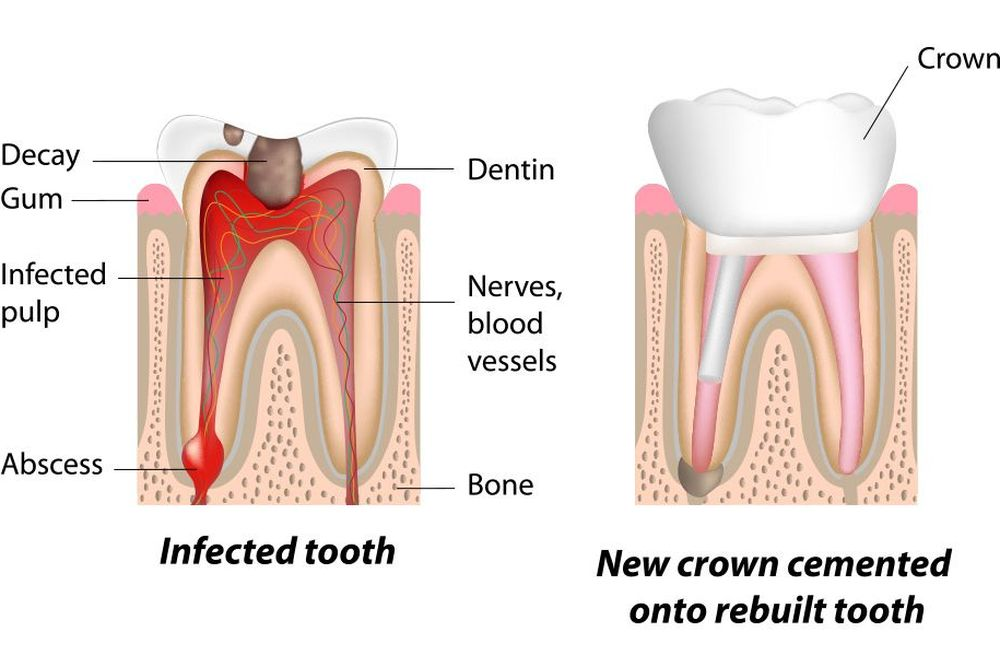 Illustration of tooth before and after root canal therapy