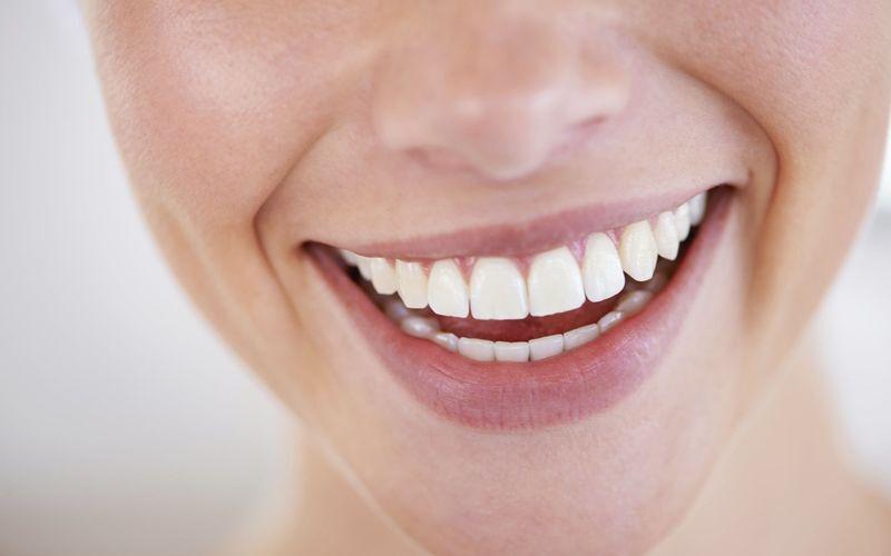 Closeup of a woman's white smile