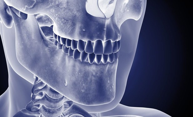 An x-ray image of a patient's mouth, jaws, and teeth