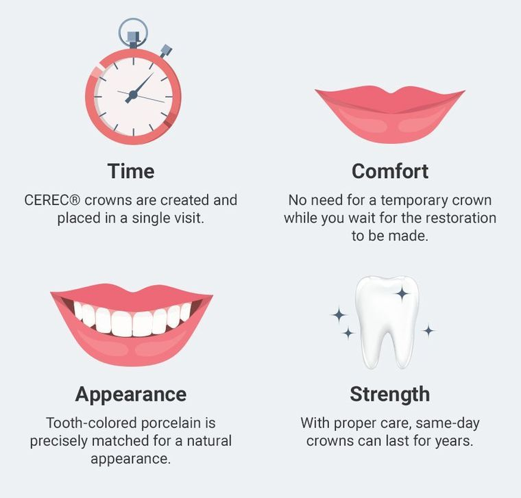 Diagram of the benefits of implants, including: time, comfort, appearance, and strength
