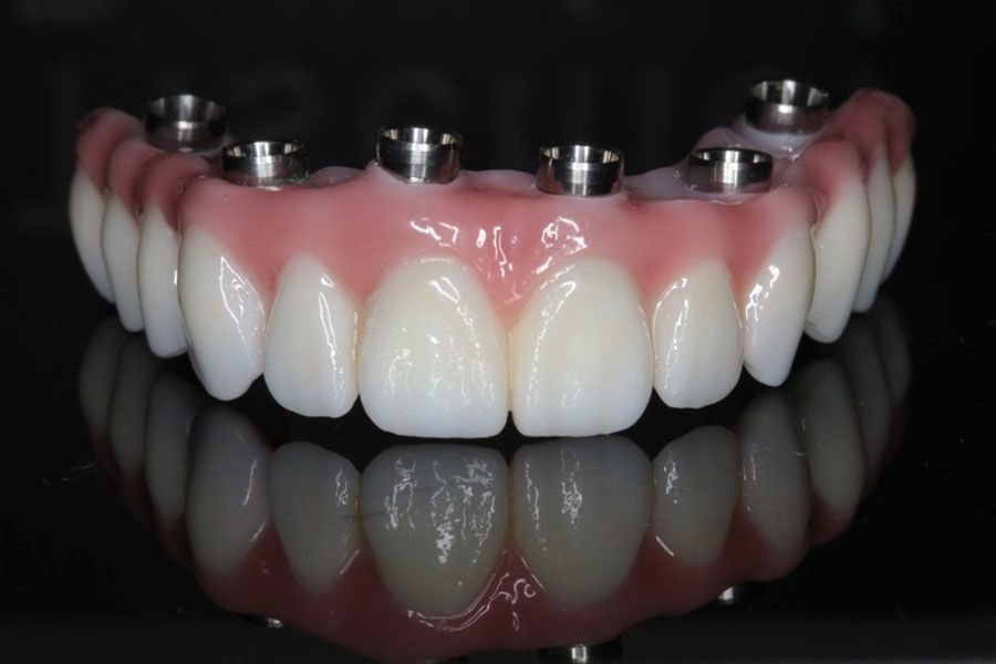 Photo of an implant-supported denture