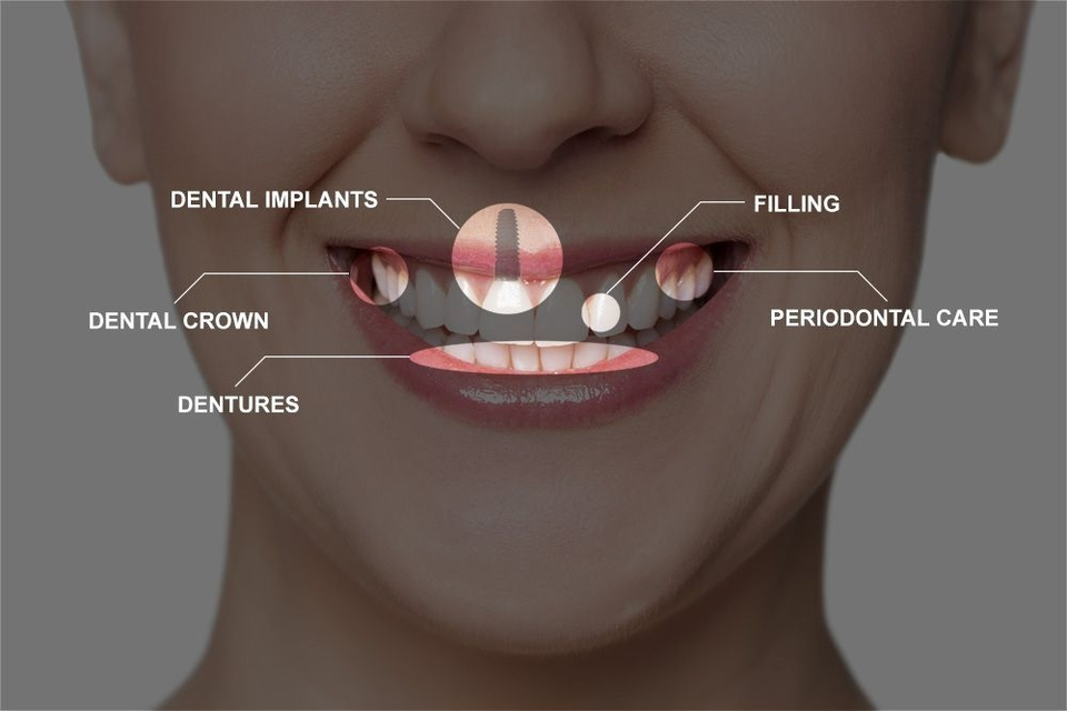 Full mouth reconstruction procedures