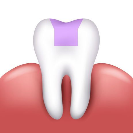 Simple illustration of how an inlay fits on a tooth