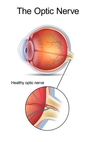 Illustration of a healthy optic nerve.